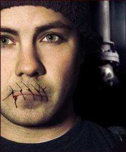 lips-sewn-shut