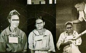 guatemala-syphilis-experiment-victims